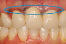 金属イオン歯茎に沈着した例