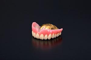 金属床(総義歯)