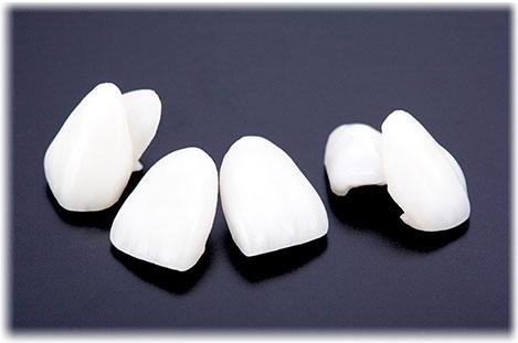白い歯/審美セラミック治療